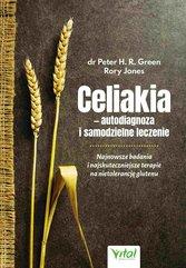 Celiakia – autodiagnoza i samodzielne leczenie. Najnowsze badania i najskuteczniejsze terapie na nietolerancję glutenu