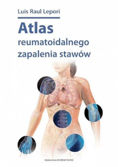 Atlas reumatoidalnego zapalenia stawów / DK Media